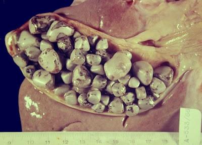 Cómo evitar las piedras en la vesícula biliar