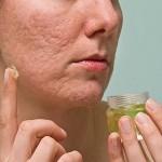 Acne causas y tratamientos