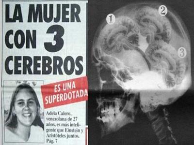Adela Calero: La mujer que tiene tres cerebros