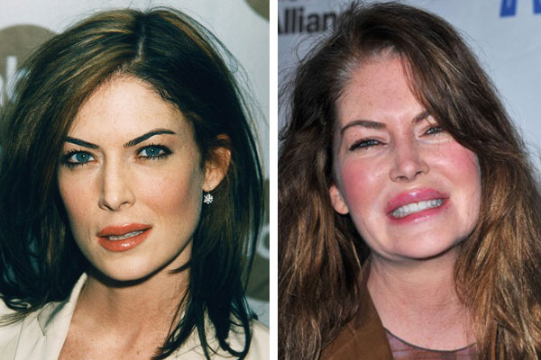 lara-flynn-boyle-before-after