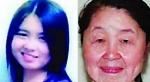 Extraña Enfermedad Envejece 40 Años A Esta Joven