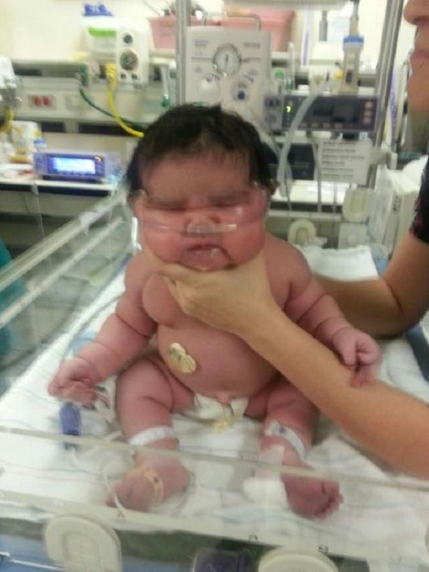 Mujer en Colorado da a luz a una niña de casi 14 libras