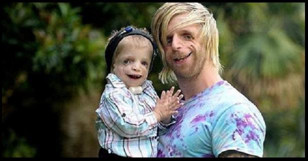 Voló 10000 kilometros para conocer a un niño que tiene su misma enfermedad