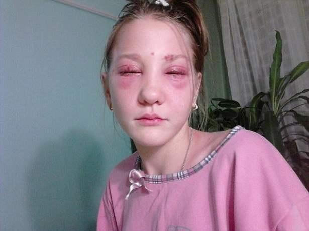 No se debe usar químicos para teñir ni cejas ni pestañas