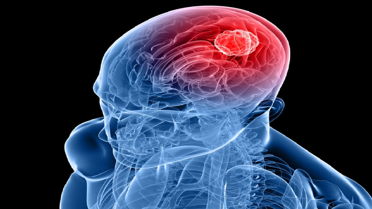 Conozca algunas señales de alerta para detectar a tiempo un derrame cerebral y cómo prevenirlo