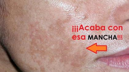 Elimina las manchas de la piel con esta crema facial de noche