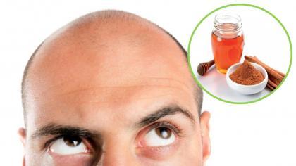 Hervir miel y canela regenera la vista, mejora la artritis, el cáncer, la vesícula biliar, el colesterol, ayuda a adelgazar y mucho más.